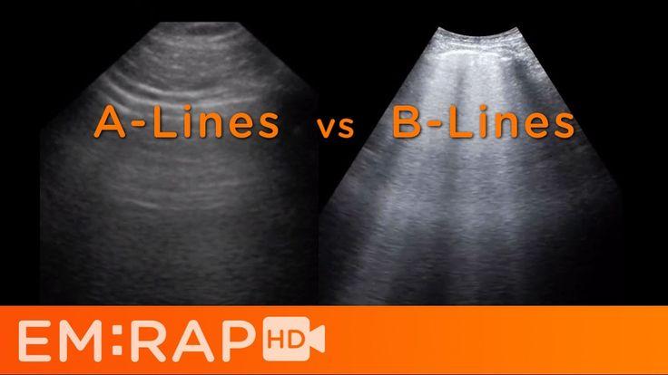 Ultrasound of Pulmonary Edema - A Lines vs B Lines