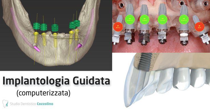 L'Implantologia guidata permette un nuovo approccio all'implantologia ,essa garantisce una maggiore predicibilità dei nostri trattamenti, con una assoluta minore invasività.