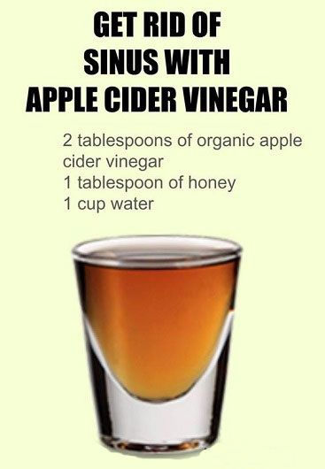 get rid of sinus with acv
