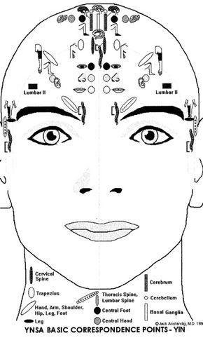 Scalp Acupuncture Images On The Front Of The Head
