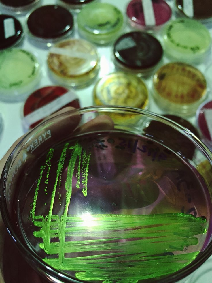 Escherichia coli on Eosin-Methylene-Blue (EMB) agar (+) Greenish metallic sheen Note: Citrobacter freundii also gives a greenish metallic sheen To differentiate, Biochemical testing E. coli gives a negative result for Citrate test (green)