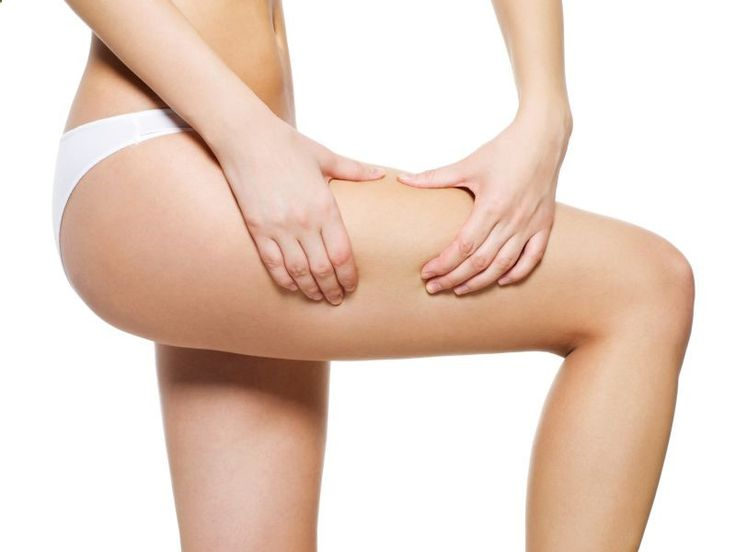 8 Quick Tips for Preventing and Treating Cellulite   Beauty High
