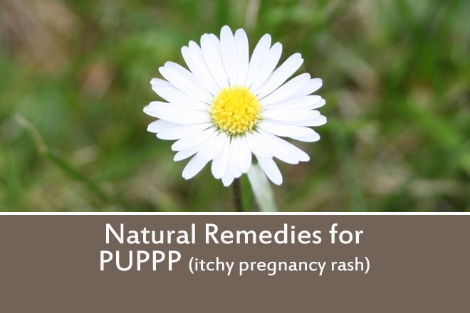 Quick Links: • Possible Remedies • PUPPP Support • My experience with PUPPP What is PUPPP The medical term for PUPPP is Pruritic urticarial papules and plaques of pregnancy, and it is also known as...