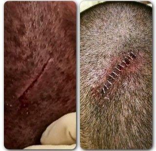 Randy Orton Receives 12 Staples Last Night - http://www.wrestlesite.com/wwe/randy-orton-receives-12-staples-last-night/