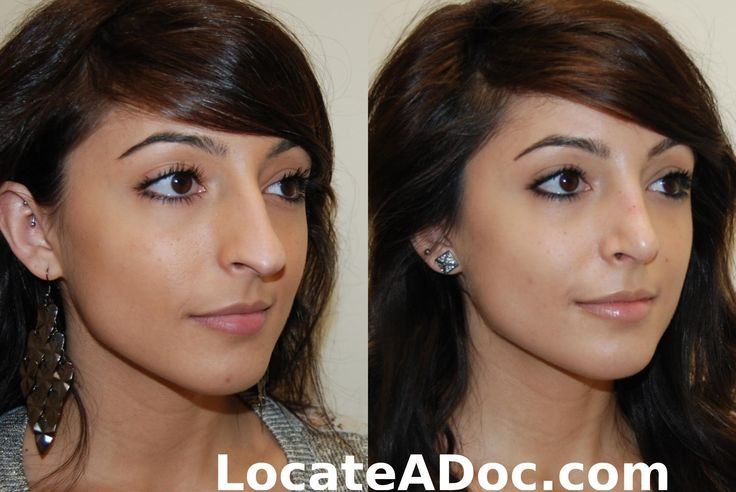 Rhinoplasty (Nosejob) Corrective Surgical Fix