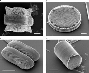 様々な珪藻の被殻。走査型電子顕微鏡による撮影。 (A:左上)Biddulphia reticulata (B:左下)Diploneis sp. (C:右上)Eupodiscus radiatus (D:右下)Melosira varians