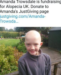 Check out my new post! Alopecia-Areata or Spot Baldness :) http://www.allornothingblog.co.uk/2017/07/20/alopecia-areata/?utm_campaign=crowdfire&utm_content=crowdfire&utm_medium=social&utm_source=pinterest