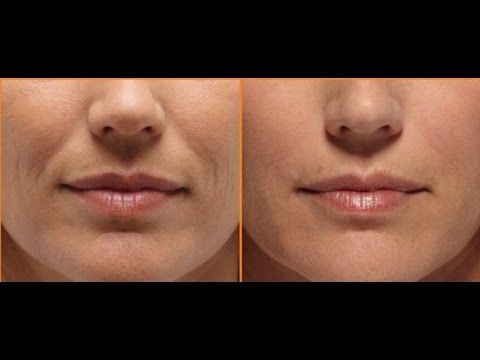Smooth Out The Smile Wrinkles With Face Massage / Laugh Wrinkles / Nasolabial Fold - YouTube