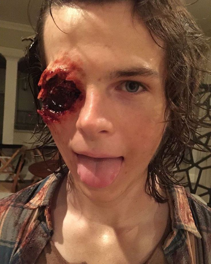 Chandler Riggs aka Carl Grims without his eyeball.