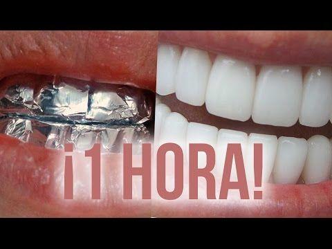 Envuelve tus dientes con papel aluminio y no créeras los resultados! - Portal Natural