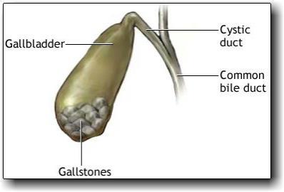 Gallbladder Sludge Natural Treatment