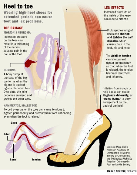 New Study Shows High Heels are Biggest Culprit of Female ...