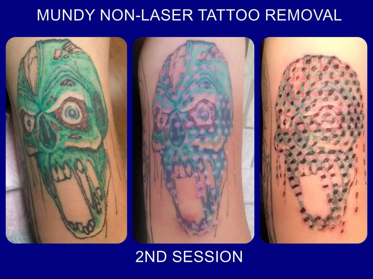 2nd session done on zombie head.... tatt2away removal
