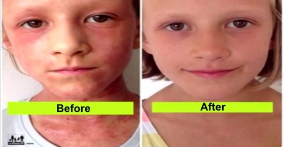 Here's an inspiring story on how a mother cure her daughter's eczema with only one change (that you can do as well).