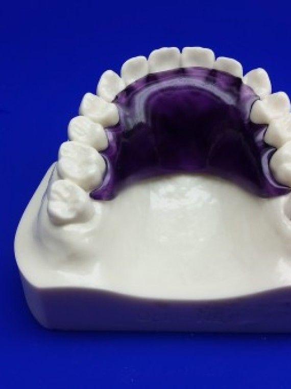 Hawley Dental Retainer |