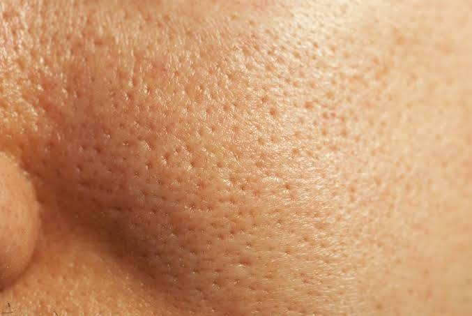 Home Remedies remedies for open pores