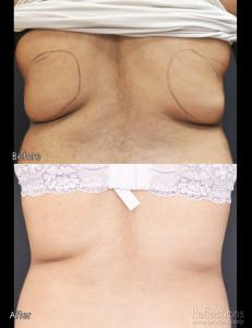 CoolSculpting Before and After CoolSculpting is now FDA-Approved to remove your stubborn bra fat!