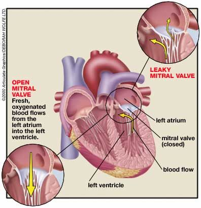 Mitral Valve Prolapse - Drink lots of water. Take 200-600 Magnesium mg per day. CoQ10 60-120 mg per day.