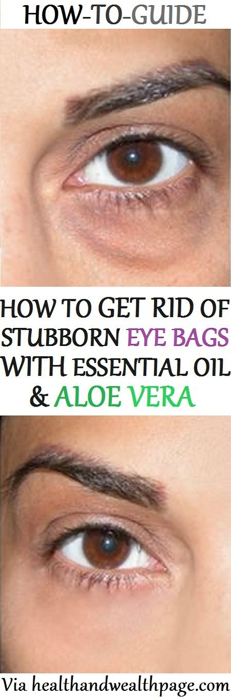In today's article, we are going to show you, how to get rid of eye bags naturally with essential oil & aloe vera.