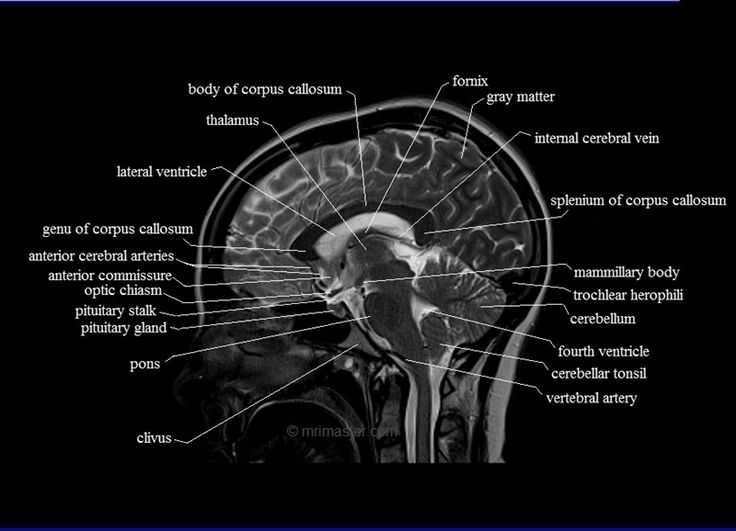 Ct Scan Brain Labeled Diagram Diy Enthusiasts Wiring Diagrams