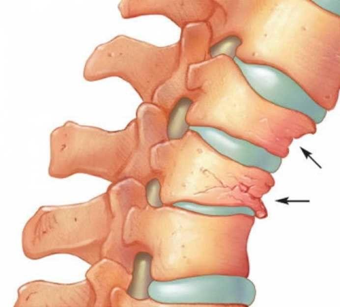 La multe persoane in varsta pot apare simultan ciocurile de papagal si osteoporoza care se caracterizeaza prineliminarea a o parte din calciul din oasele sau