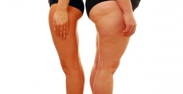 Εξαφανίστε το Λίπος από τα πόδια μέσα μία Εβδομάδα! Δείτε Πως..