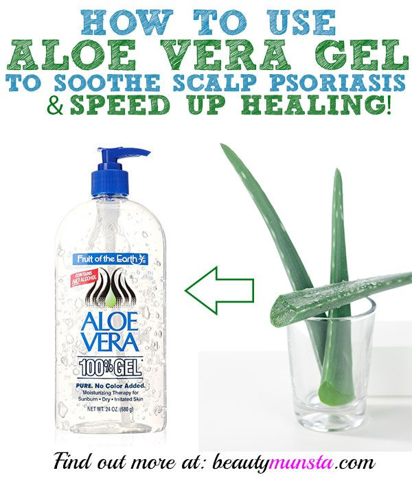 Did you know that you can get great relief by using aloe vera on scalp psoriasis? Learn how to make a DIY soothing treatment for scalp psoriasis using aloe