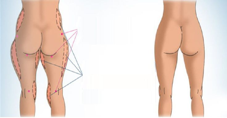 Inner thigh exercises are incredibly popular, with many under the mistaken belief that by targeting the inner thigh muscles one is able to burn thigh fat, tone legs and achieve firm inner thighs. E…