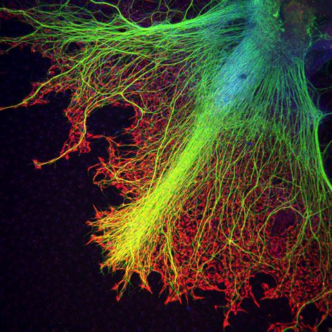 Neurons (in blue to yellow) growing on top of astrocytes (in red, helper cells within the nervous system) in a human stem cell embryoid body (a cluster of differentiating human embryonic stem cells).