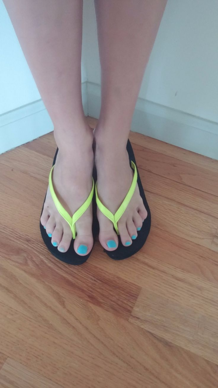 Yellow Flip Flops by Toast!