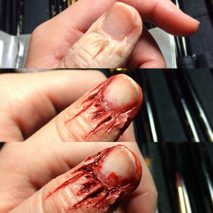 SFX Makeup by Janae Smith. 'Tis the season... to have hangnails SFX hangnail makeup process pictures. I HATE hangnails, they are so evil and painful. For this look I used Ben Nye scar wax, the painted it with skin illustrator and Ben Nye pro FX palette