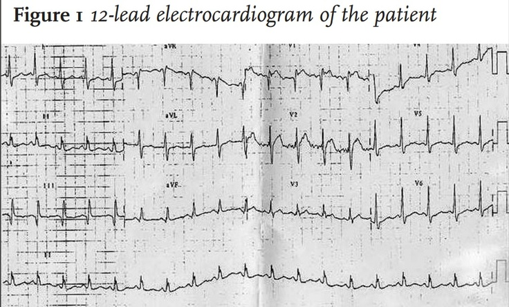 A 66 y/o Man was admitted to our hospital because of dyspnoea and elevated body temperature (38.1°C).   A month prior, the pt. suffered an ischaemic CVA. Hx also revealed a MI, 7 years ago and a TIA. PE: BP 130/80 mmHg, pulse 102 BPM and regular; the central venous pressure was elevated. RR 36 breaths/min. Examination of the lungs and heart revealed no abnormalities. The right lower extremity was red, warm and swollen and painful on palpation. most likely diagnosis?