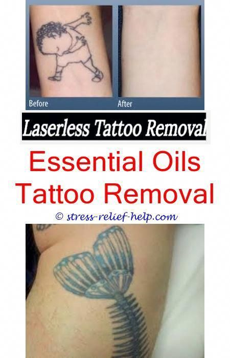 Tattoo Removal Itching.How To Remove Sharpie Temporary