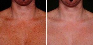 IPL Photofacial Treatment to treat sun damage on the chest