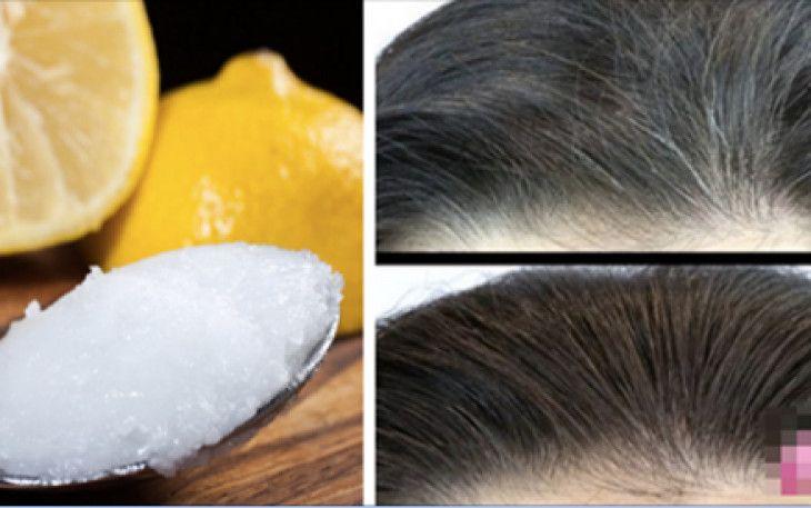Oggi vi proponiamo una soluzione naturale per aiutare a dimenticare tutti i coloranti e sostanze chimiche che danneggiano i capelli.Si tratta rimedio casalingo a base di due ingredienti naturali che sono molto efficaci per dire addio ai capelli grigi e rinforzare il capello nutrendolo alla ...