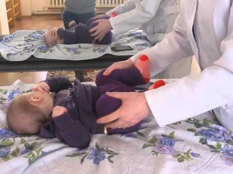 Дисплазия тазобедренного сустава - Школа доктора Комаровского - YouTube