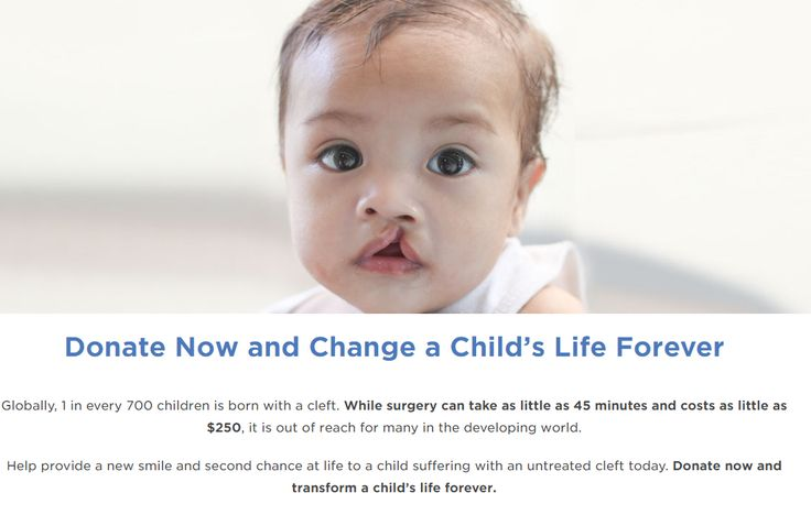The 10 best cleft palate awareness images on pinterest cleft lip cleft palate and lip awareness redeem your 1 cent smile emoji pillow and we will donate fandeluxe Image collections