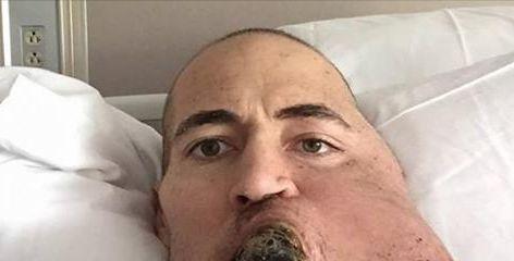 38-ogodišnjak je počeo da oseća bol u licu. Kada su mu saopštili dijagnozu, srušio mu se ceo svet!