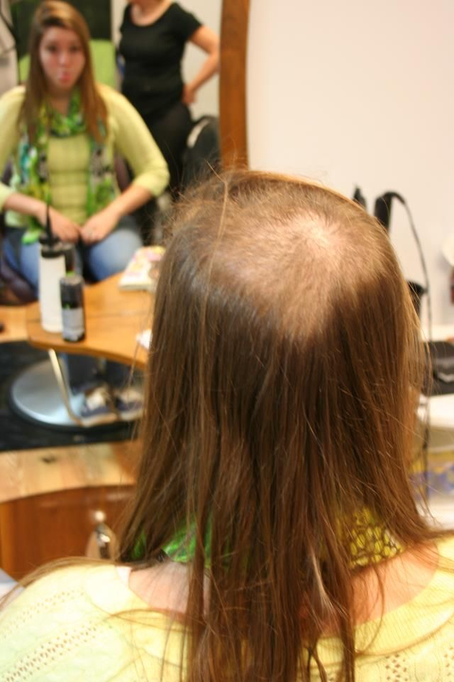 70 best images about Trichotillomania on Pinterest