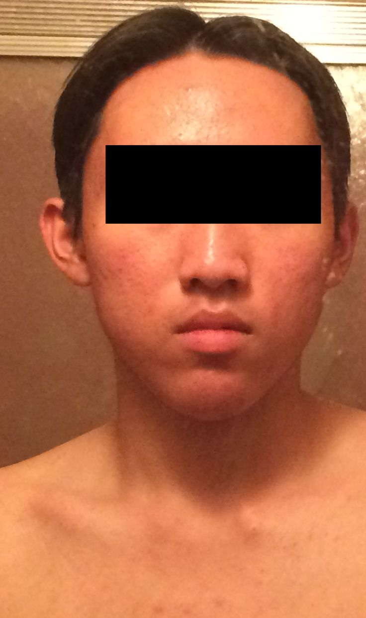 [Acne] My face looks sunburnt all the time (especially in the afternoon). Please help! -routine in comments-