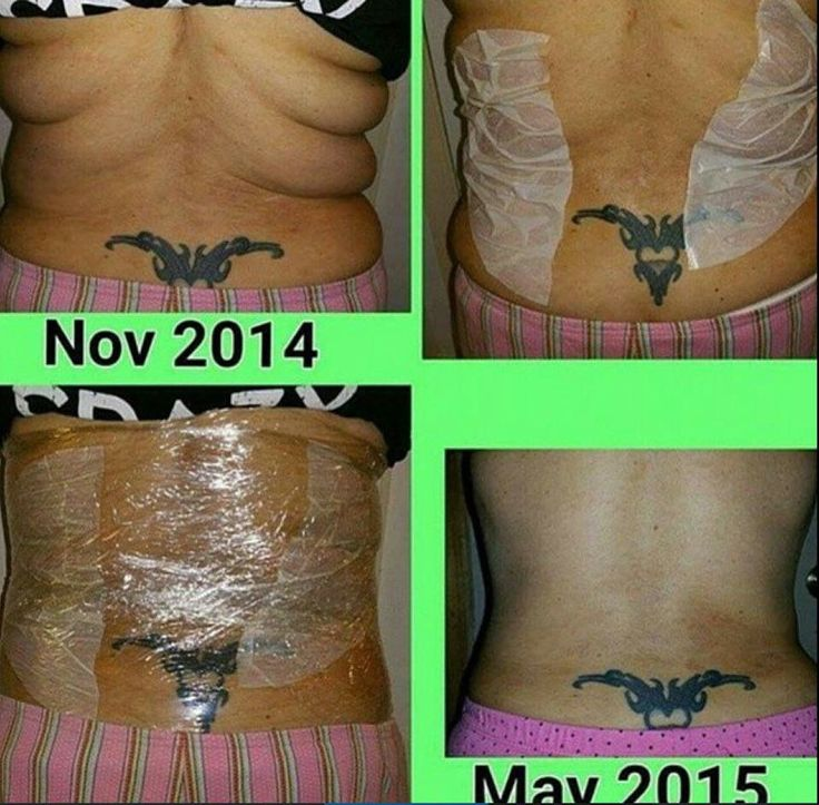 17 best ideas about saran wrap stomach on pinterest for Can i use coconut oil on my tattoo