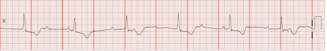 This rhythm reflects Mobitz Type I AV block or Wenkebach, which is not usually secondary to structural abnormalities when the QRS complex is narrow, but is vagally mediated instead. Increased vagal tone occurs in the young or the athletic with frequencies ranging from 2 to 10%. No treatment is necessary unless the patient is symptomatic.