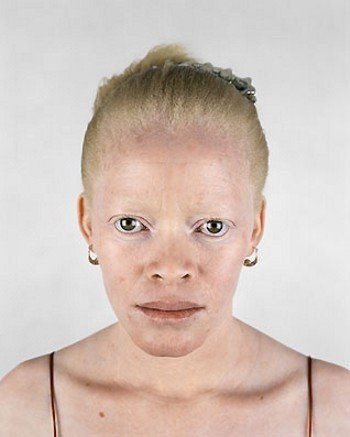 7 - Albino africans