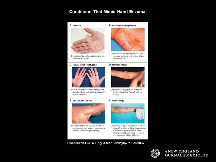 Not all red scaly hand rashes are eczema.  Here are some of the conditions that can mimic hand eczema, including psoriasis, fungal infections, lichen simplex chronicus, herpes infections, palmoplantar pustulosis and latex allergy.    http://www.nejm.org/doi/pdf/10.1056/NEJMcp1104084