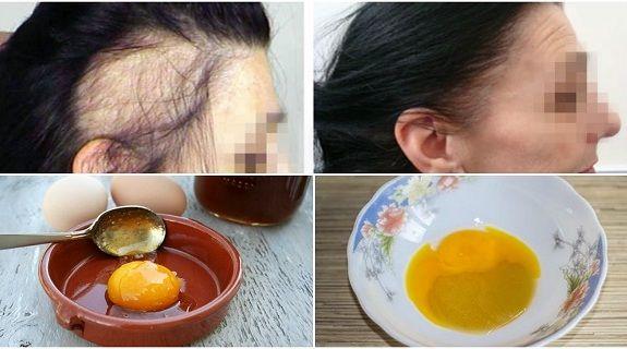 ako zabrániť plešatosti a podporiť rast vlasov