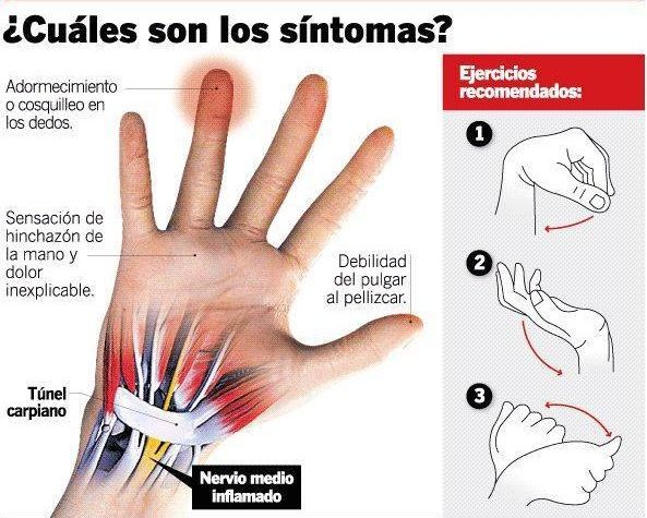 Sintomas Tunel Carpiano - Clínica de Fisioterapia y Osteopatía FisioBian