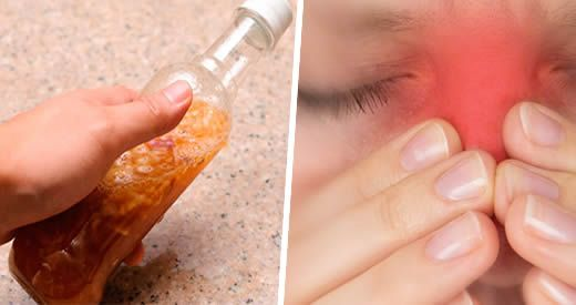 Come trattare la sinusite con la barbaforte