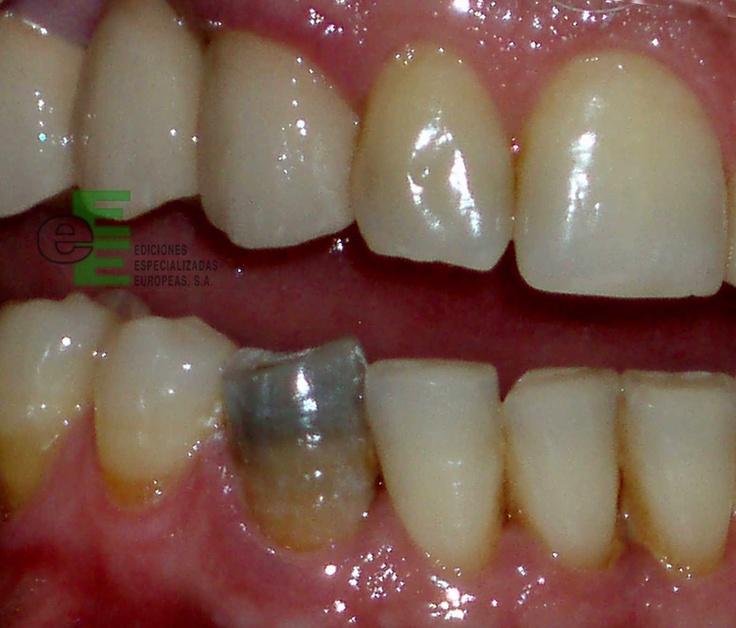 """Capítulo 2. """"Patología de las discoloraciones dentales"""" de Forner L, Amengual J. Figura 8. Discoloración gris-negra de la dentina de un diente provocada por la necrosis te su tejido pulpar."""