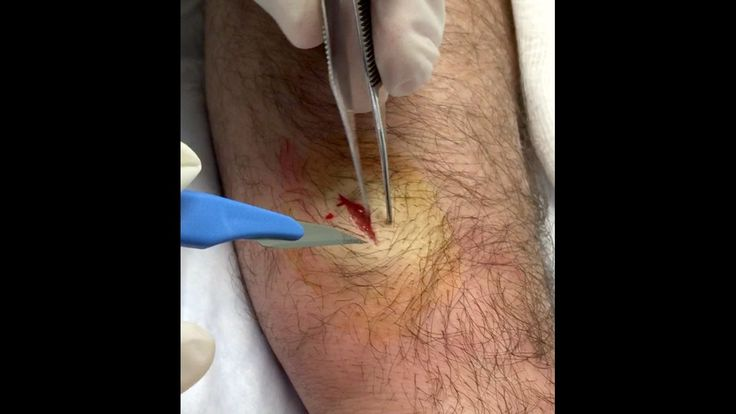 #Forearm_Ganglion_Cyst_Excision Redux!  New Koi Vid!