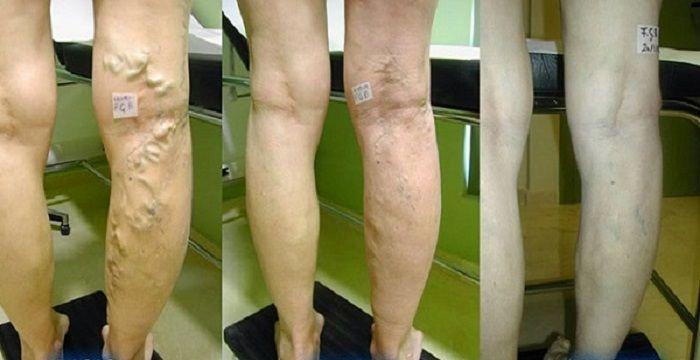 Heal Your Varicose Veins With A Mix Of Aloe Vera, Carrot And Apple Cider Vinegar - The House of Health